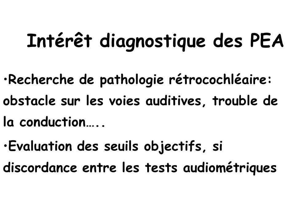 Intérêt diagnostique des PEA
