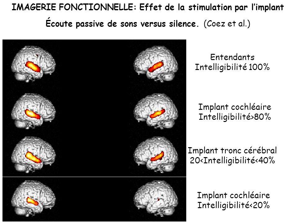Implant cochléaire Intelligibilité<20%
