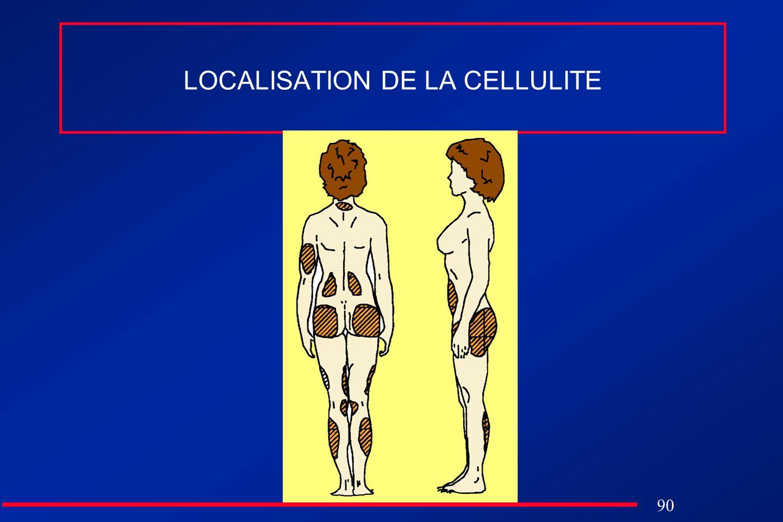 LOCALISATION DE LA CELLULITE