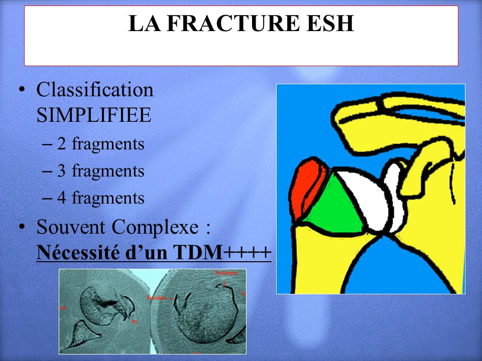 LA FRACTURE ESH Classification SIMPLIFIEE