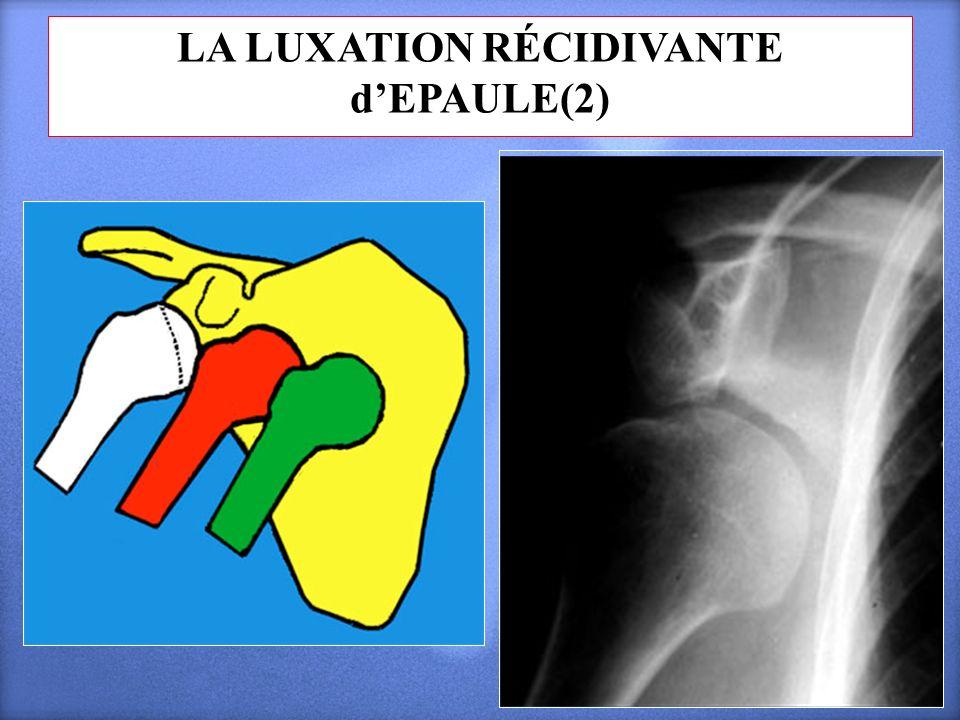 LA LUXATION RÉCIDIVANTE d'EPAULE(2)