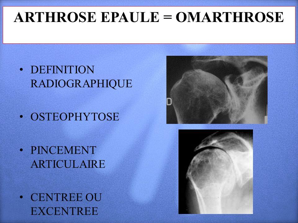 ARTHROSE EPAULE = OMARTHROSE