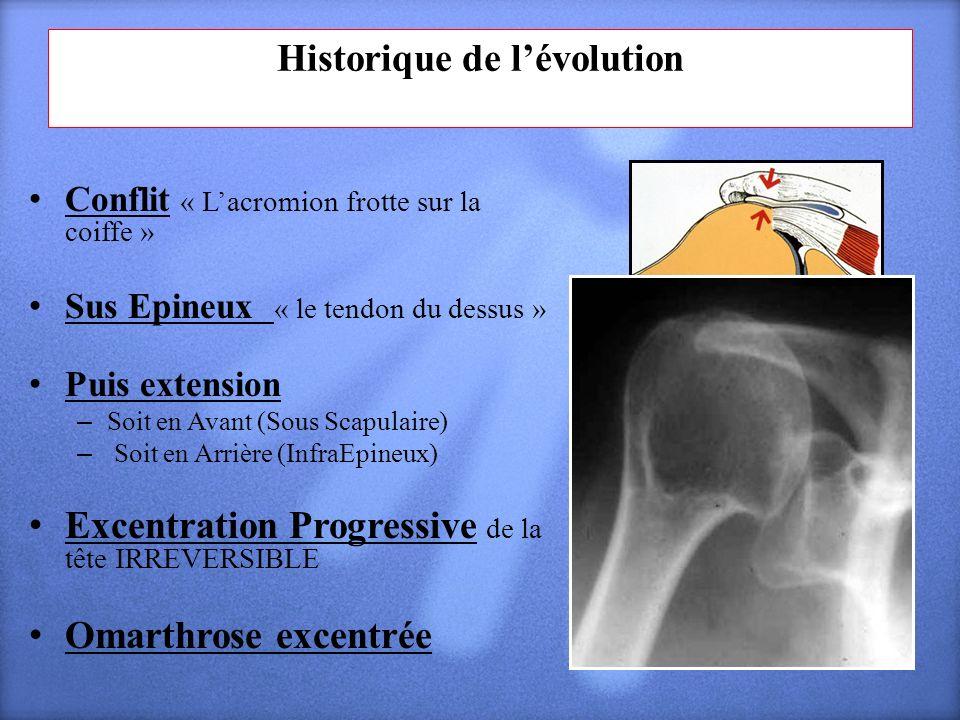 Historique de l'évolution