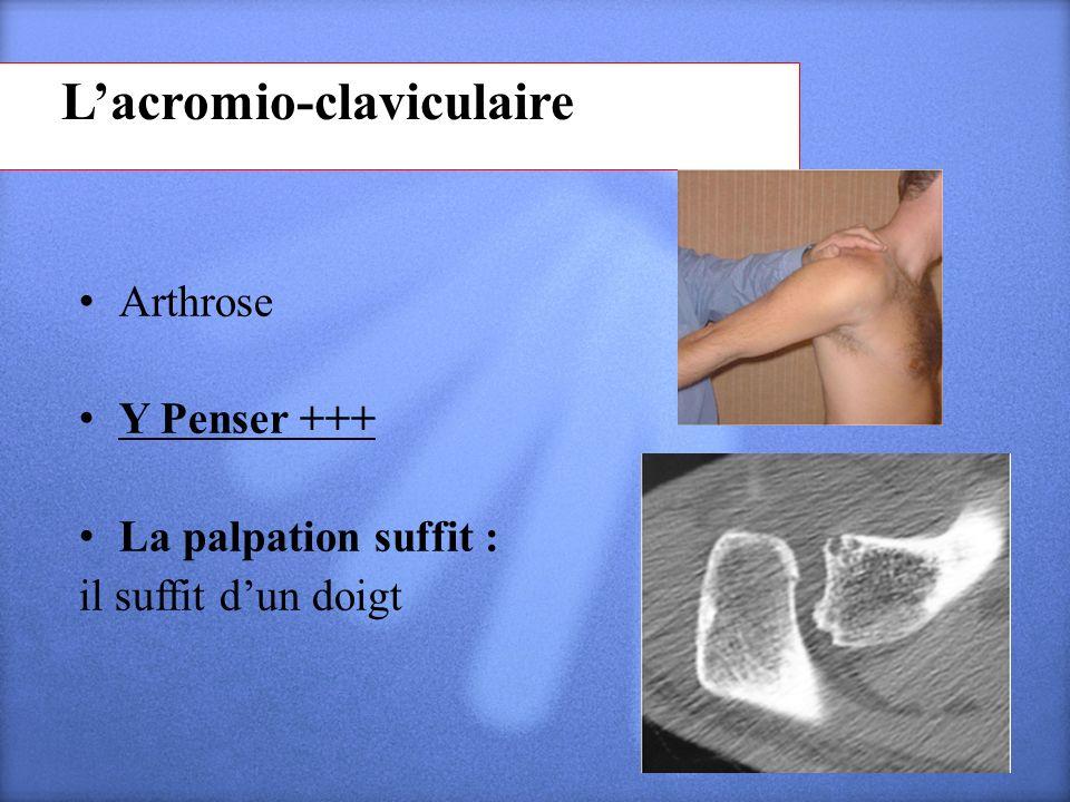 L'acromio-claviculaire