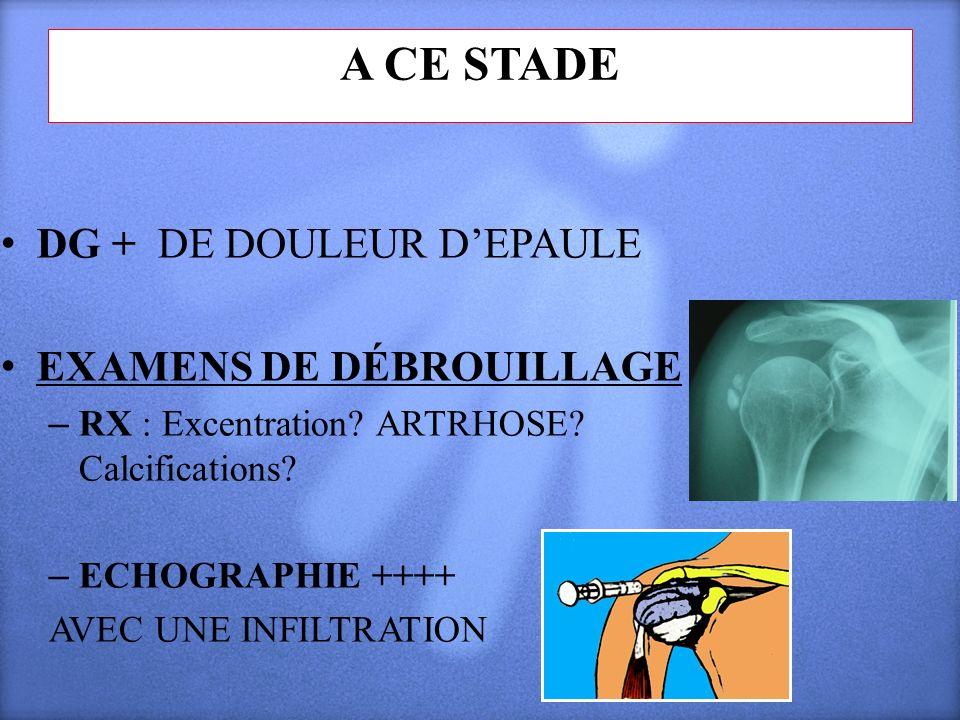 A CE STADE DG + DE DOULEUR D'EPAULE EXAMENS DE DÉBROUILLAGE