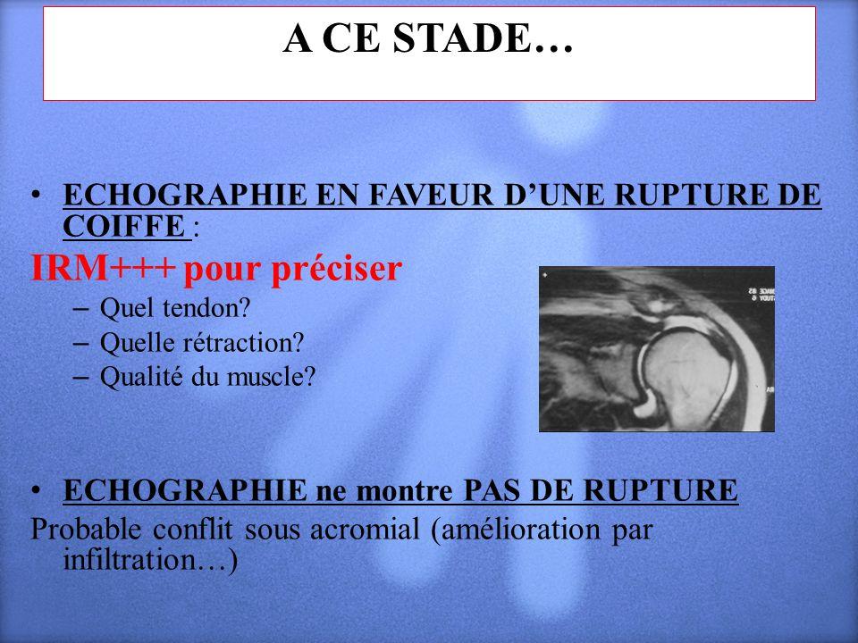 A CE STADE… IRM+++ pour préciser