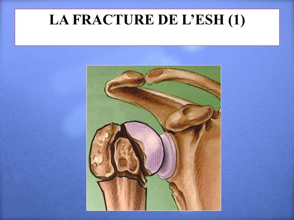 LA FRACTURE DE L'ESH (1)