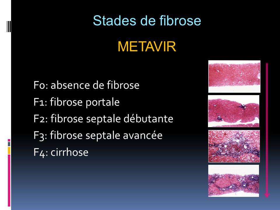 Stades de fibrose METAVIR