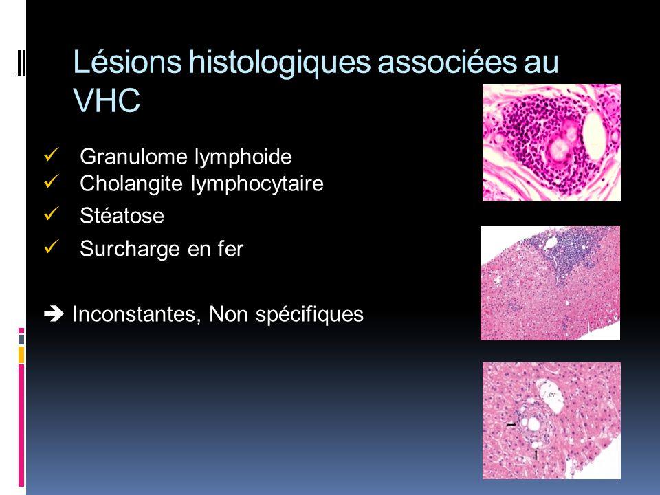 Lésions histologiques associées au VHC