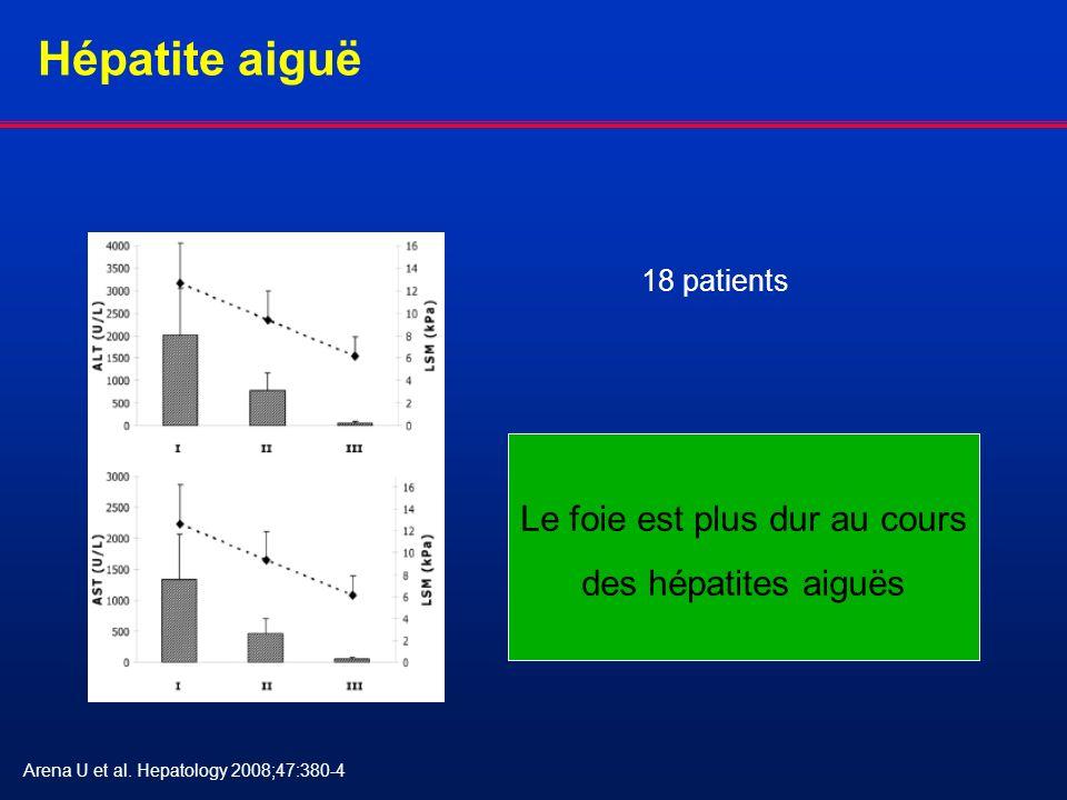 Hépatite aiguë Le foie est plus dur au cours des hépatites aiguës