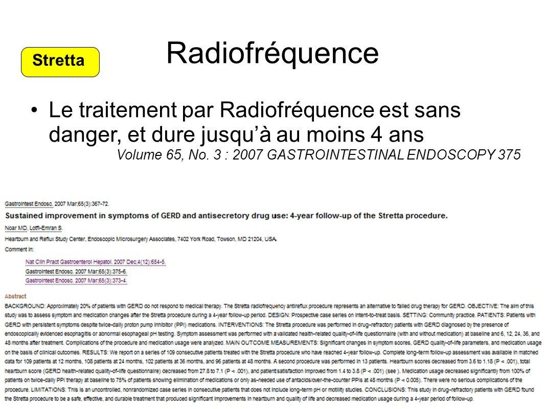Radiofréquence Stretta. Le traitement par Radiofréquence est sans danger, et dure jusqu'à au moins 4 ans.