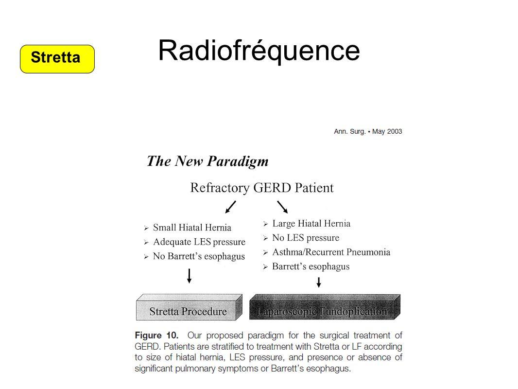 Radiofréquence Stretta
