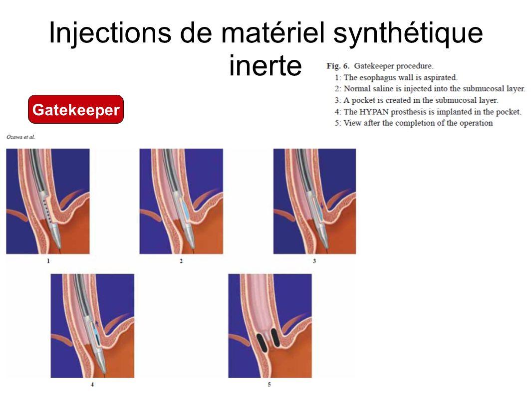 Injections de matériel synthétique inerte