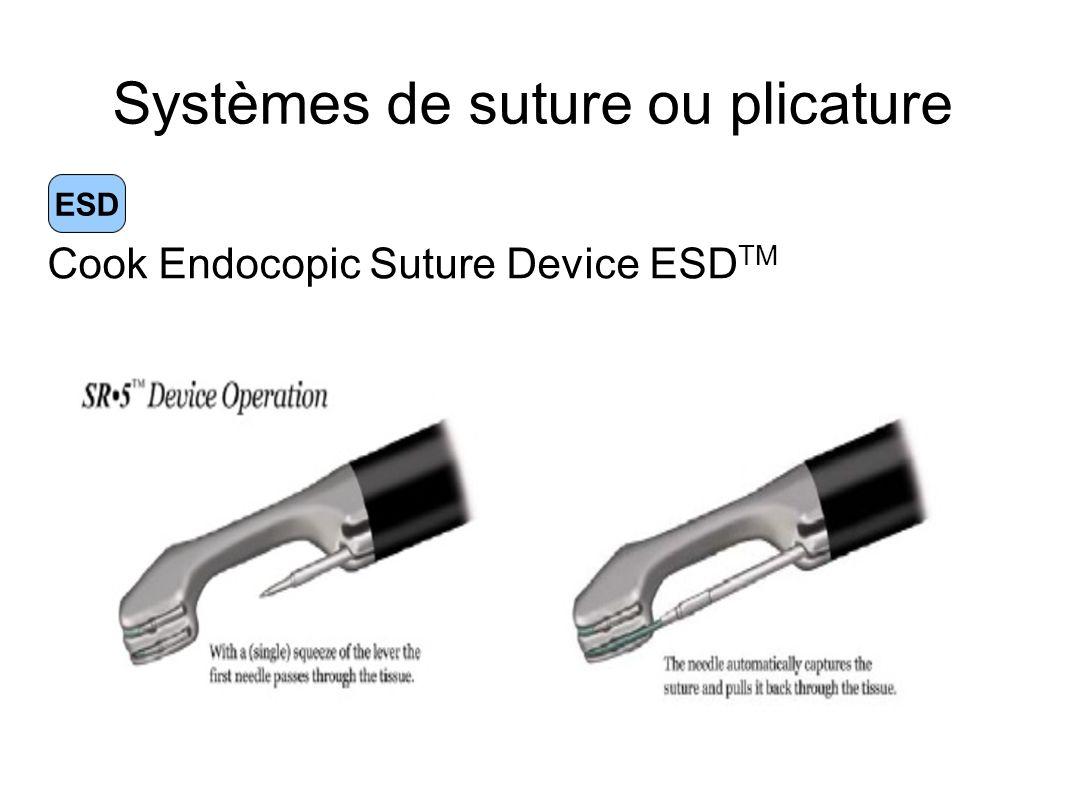 Systèmes de suture ou plicature