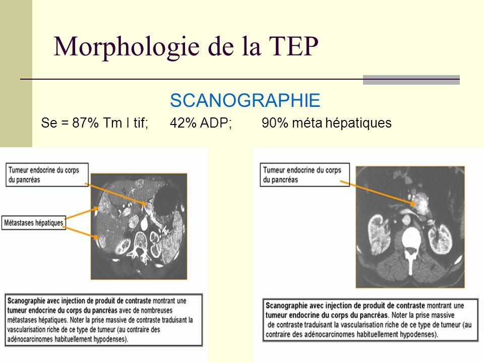 Morphologie de la TEP SCANOGRAPHIE