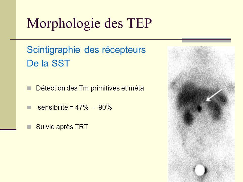 Morphologie des TEP Scintigraphie des récepteurs De la SST