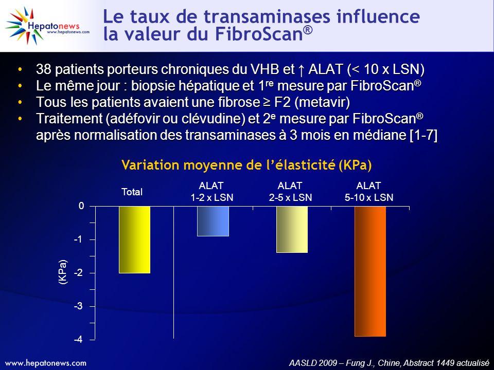 Le taux de transaminases influence la valeur du FibroScan®
