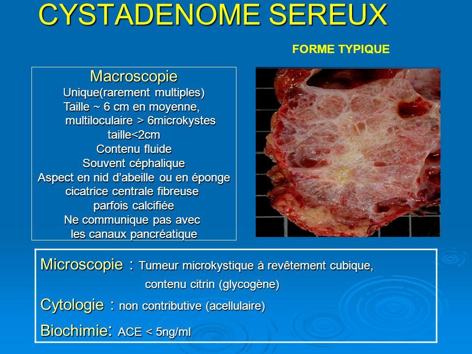 CYSTADENOME SEREUX Macroscopie