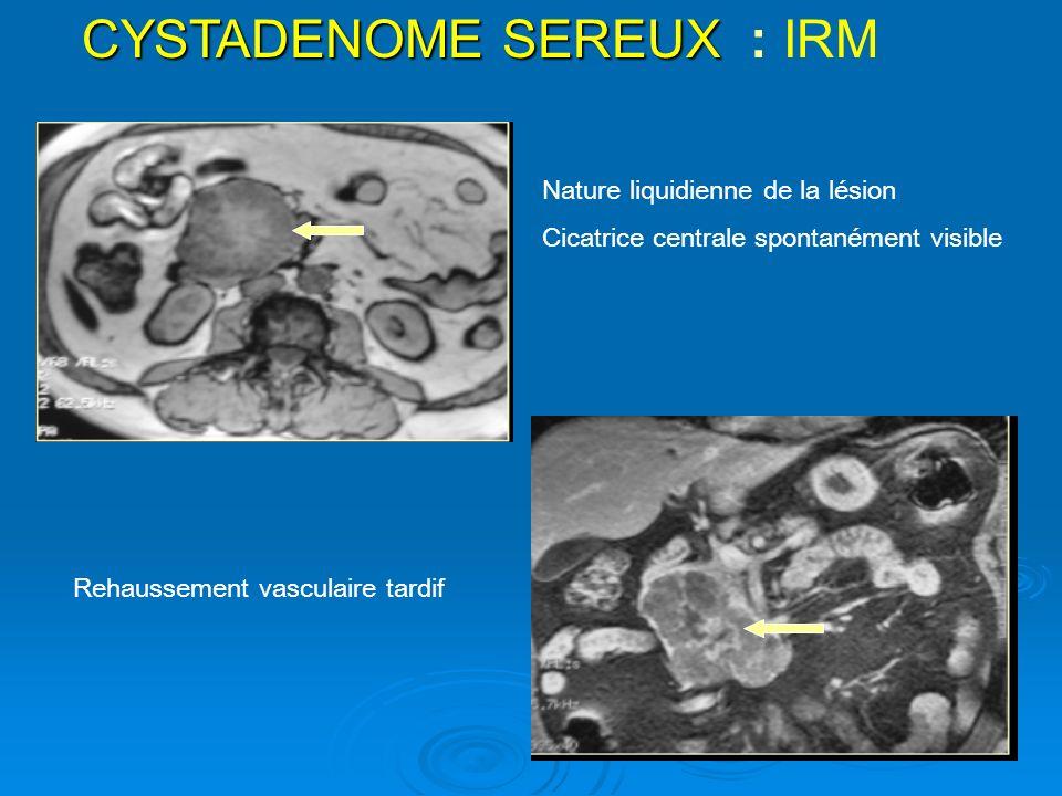 CYSTADENOME SEREUX : IRM
