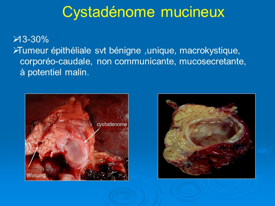 Cystadénome mucineux 13-30%