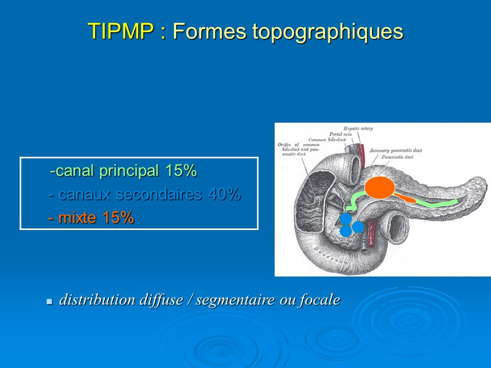 TIPMP : Formes topographiques