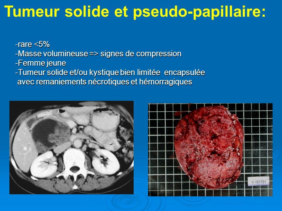Tumeur solide et pseudo-papillaire: