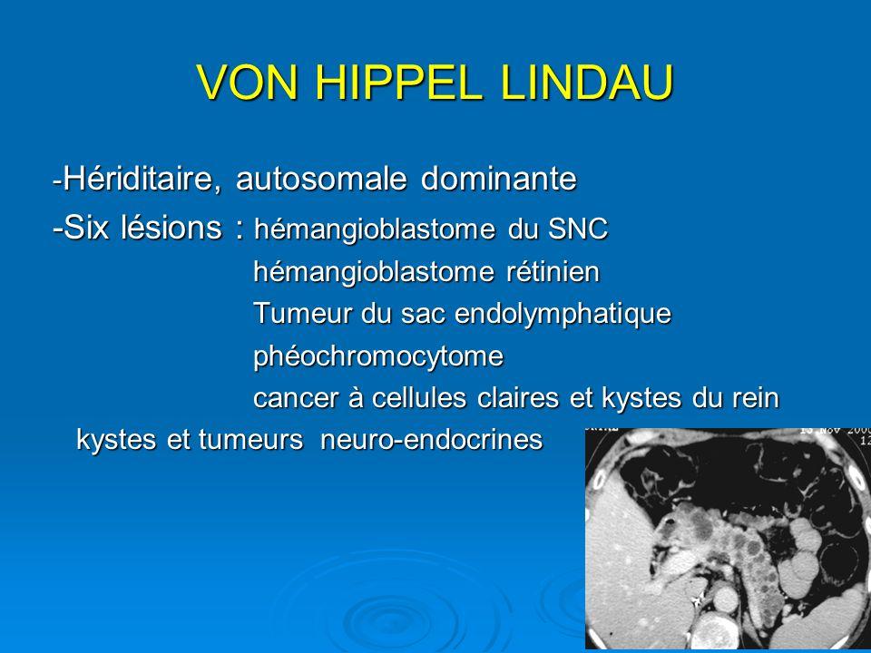 VON HIPPEL LINDAU -Six lésions : hémangioblastome du SNC