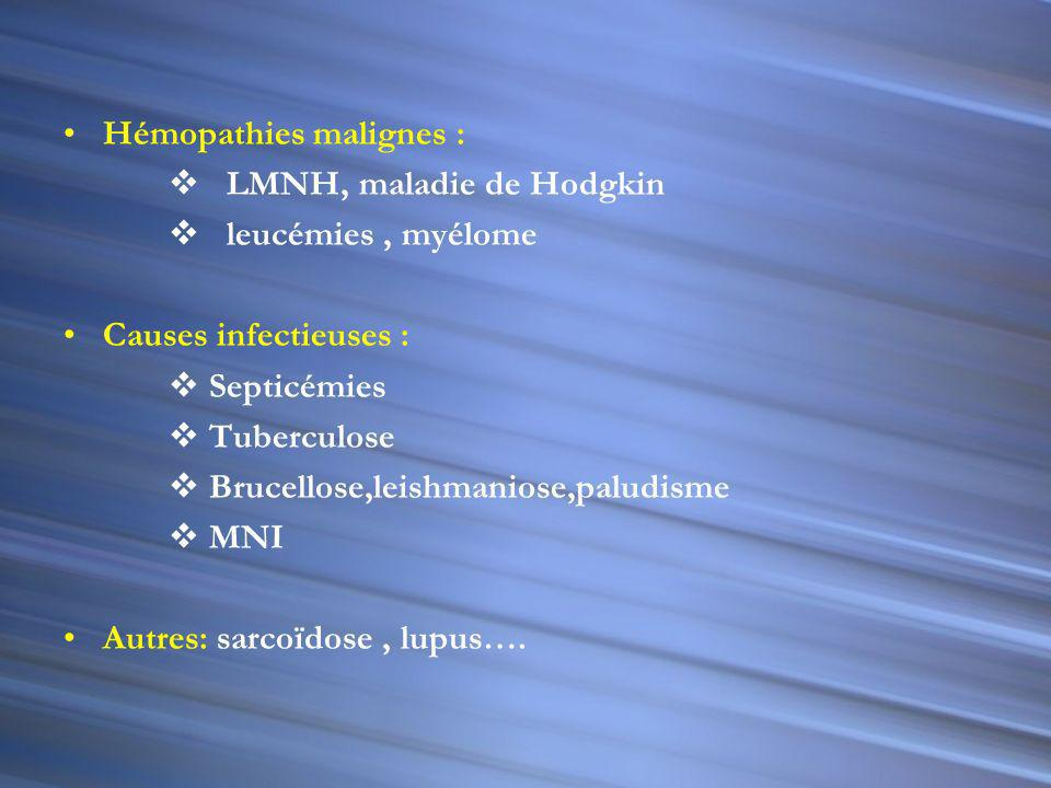 Hémopathies malignes :