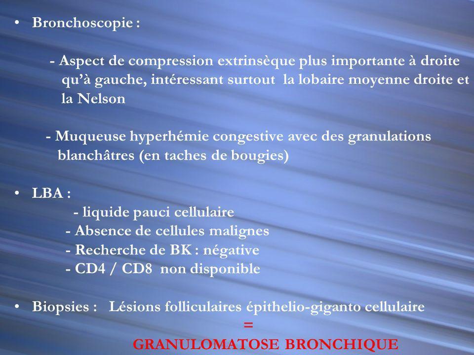 Bronchoscopie : - Aspect de compression extrinsèque plus importante à droite. qu'à gauche, intéressant surtout la lobaire moyenne droite et.