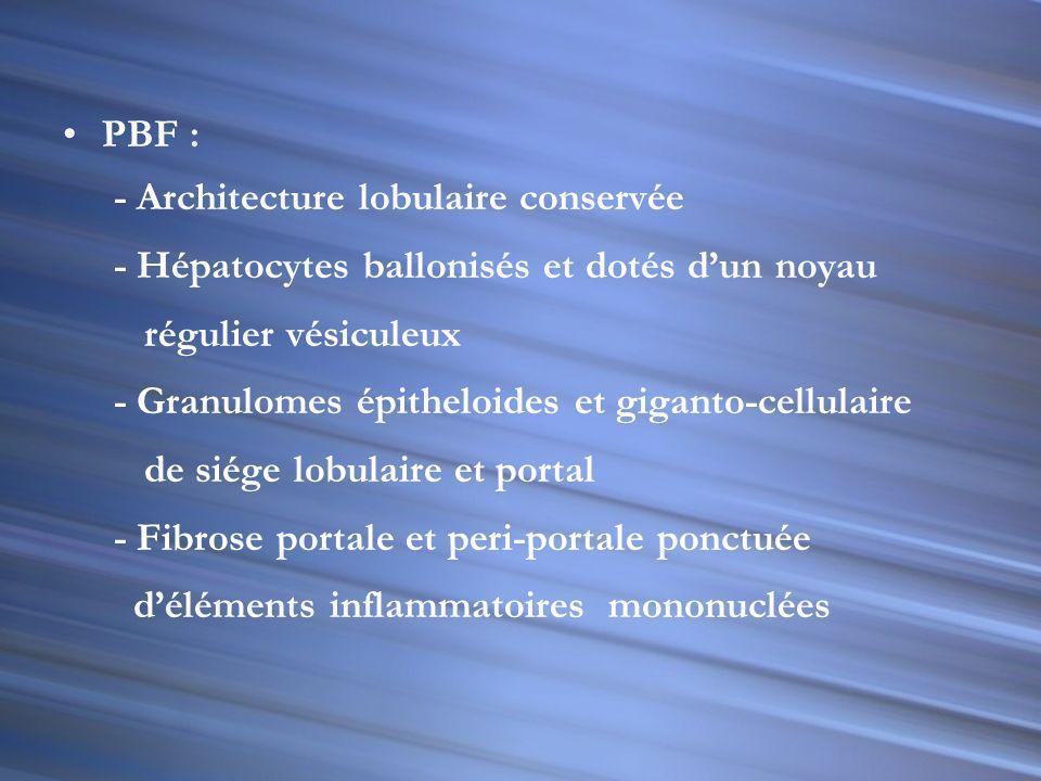 PBF : - Architecture lobulaire conservée. - Hépatocytes ballonisés et dotés d'un noyau. régulier vésiculeux.