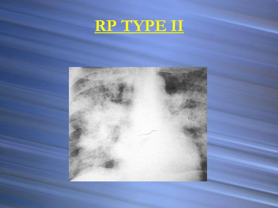 RP TYPE II