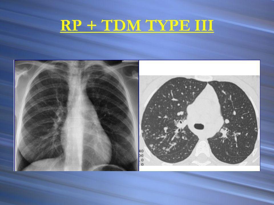 RP + TDM TYPE III