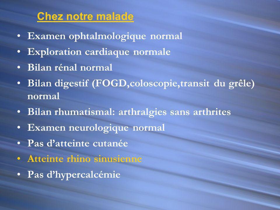 Chez notre malade Examen ophtalmologique normal. Exploration cardiaque normale. Bilan rénal normal.