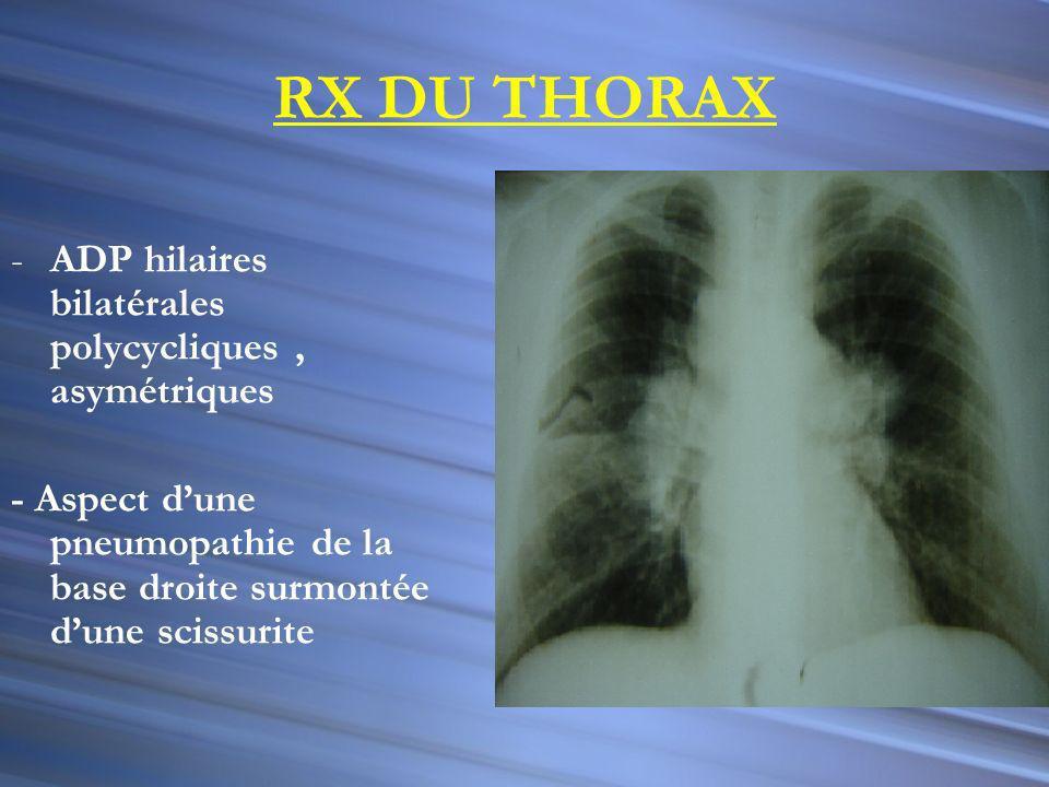 RX DU THORAX ADP hilaires bilatérales polycycliques , asymétriques