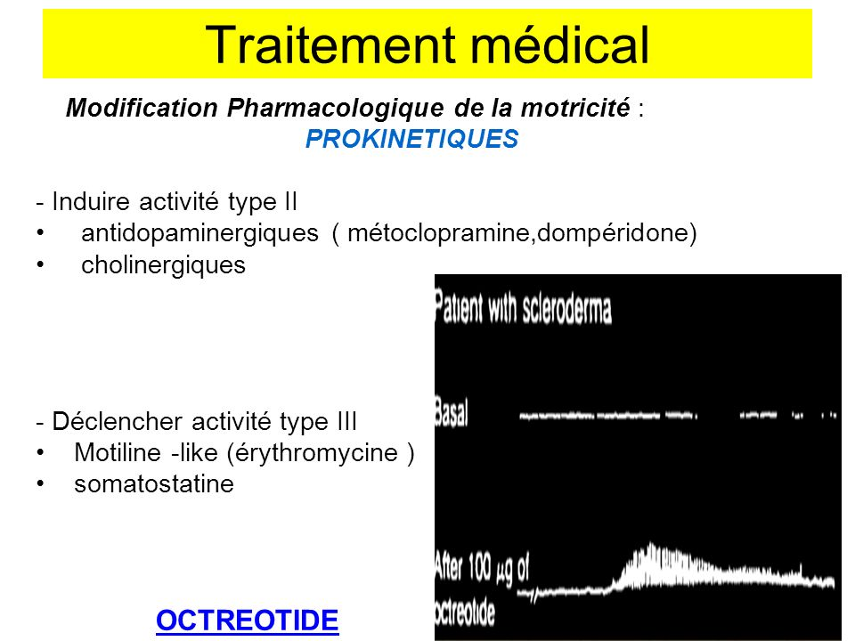 Traitement médical OCTREOTIDE