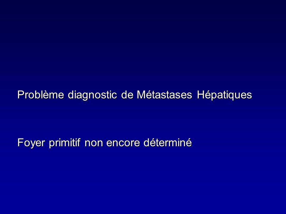 Problème diagnostic de Métastases Hépatiques