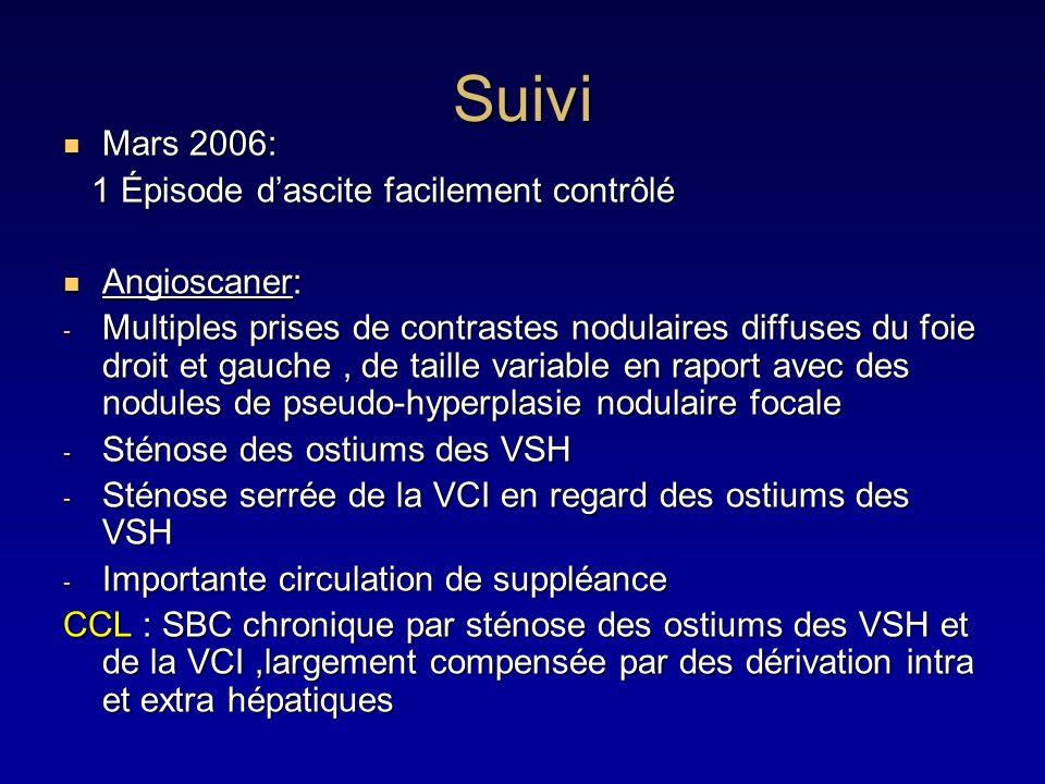 Suivi Mars 2006: 1 Épisode d'ascite facilement contrôlé Angioscaner: