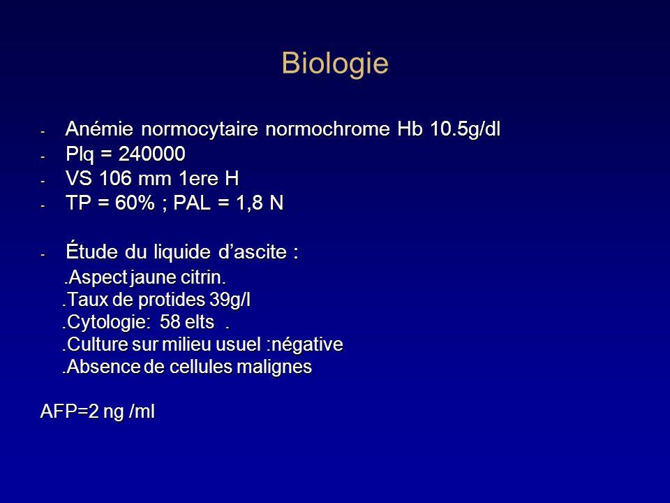 Biologie Anémie normocytaire normochrome Hb 10.5g/dl Plq = 240000