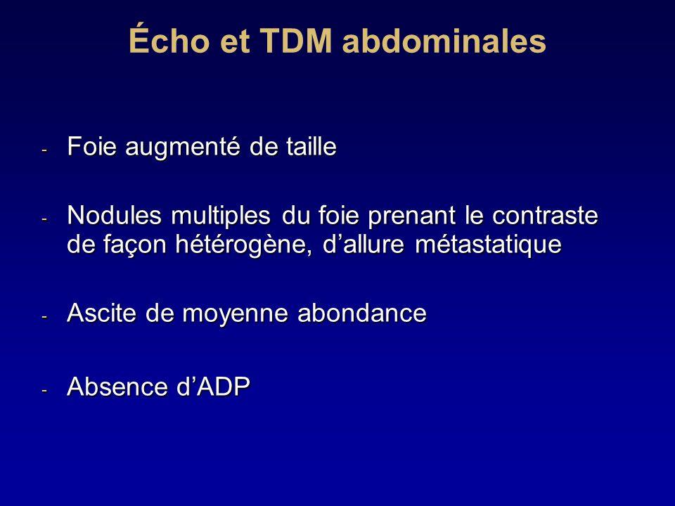 Écho et TDM abdominales