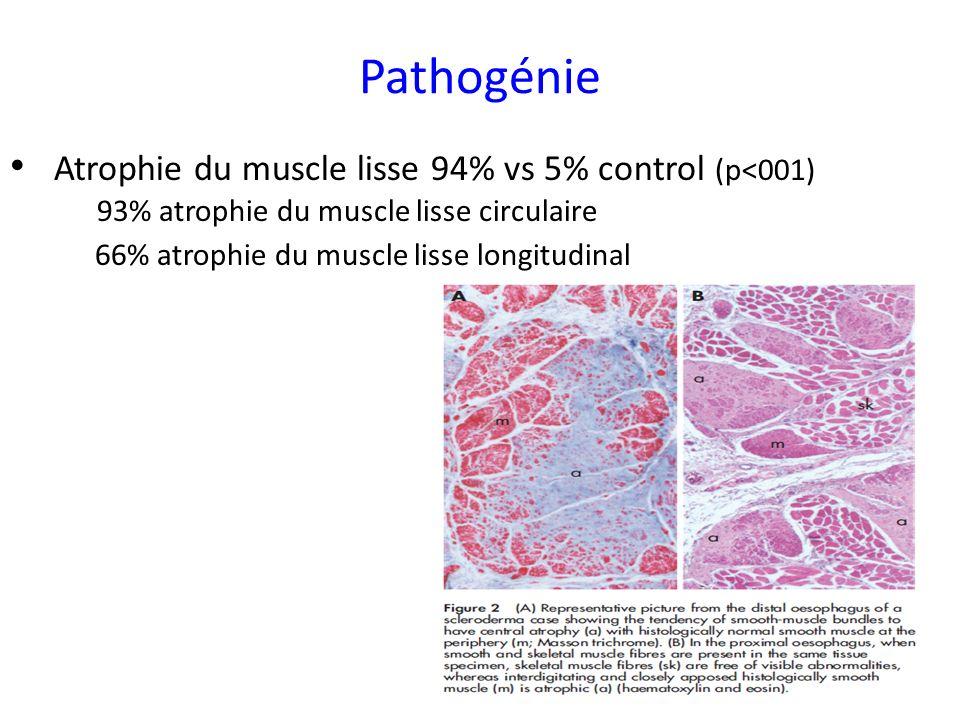 Pathogénie Atrophie du muscle lisse 94% vs 5% control (p<001)