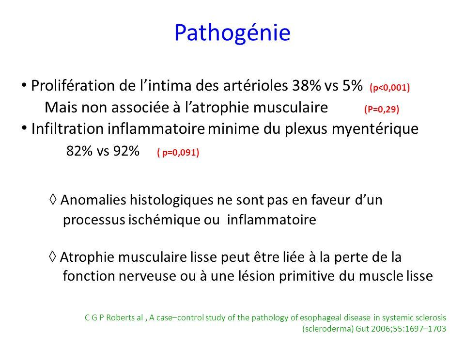 Pathogénie ◊ Anomalies histologiques ne sont pas en faveur d'un