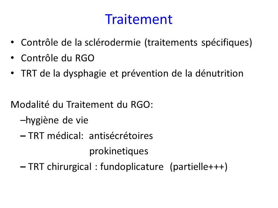 Traitement Contrôle de la sclérodermie (traitements spécifiques)