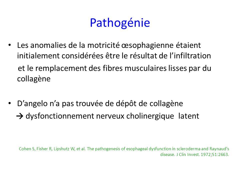 Pathogénie Les anomalies de la motricité œsophagienne étaient initialement considérées être le résultat de l'infiltration.
