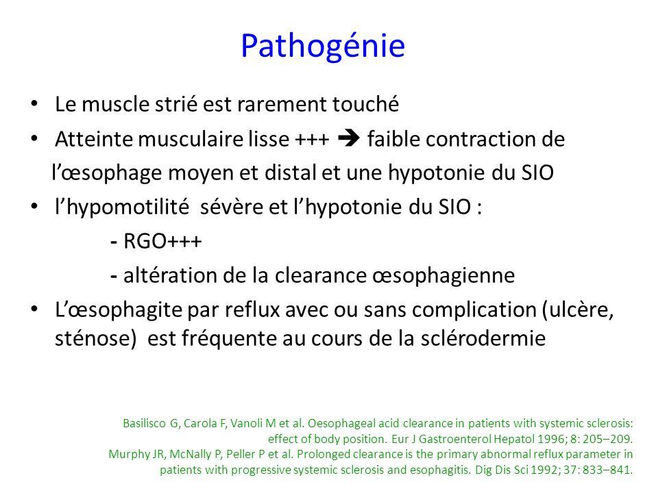 Pathogénie Le muscle strié est rarement touché
