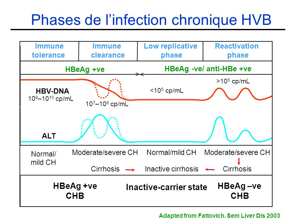 Phases de l'infection chronique HVB