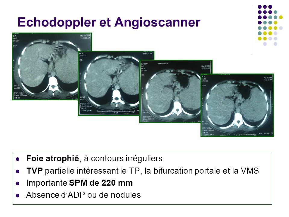 Echodoppler et Angioscanner