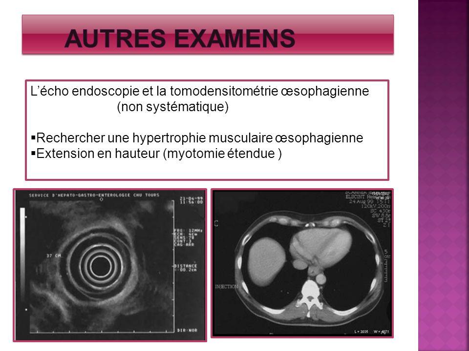 Autres examens L'écho endoscopie et la tomodensitométrie œsophagienne