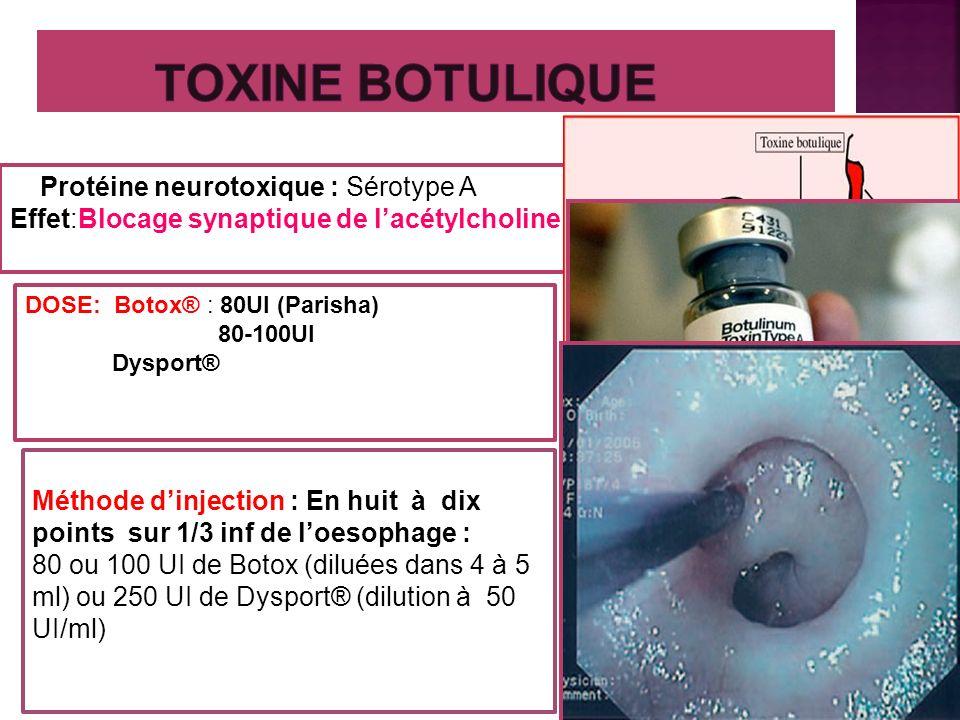TOXINE BOTULIQUE Protéine neurotoxique : Sérotype A