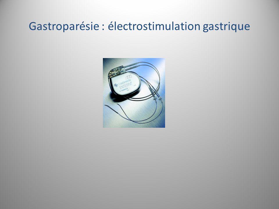 Gastroparésie : électrostimulation gastrique