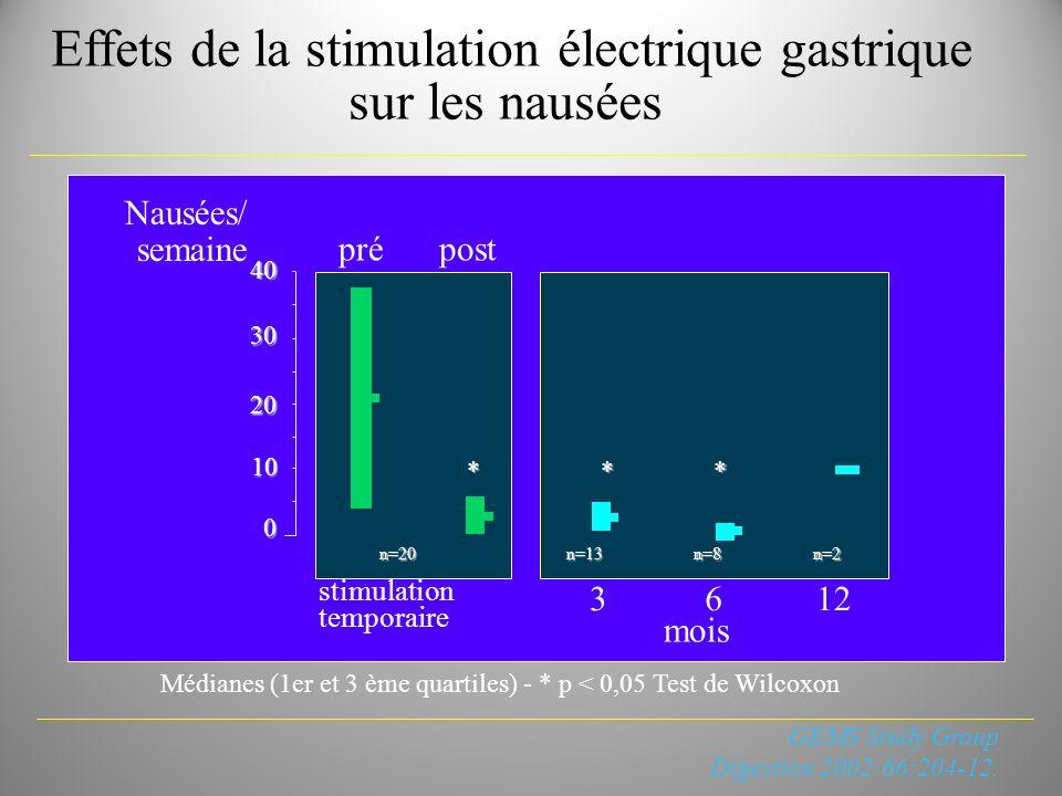 Effets de la stimulation électrique gastrique sur les nausées
